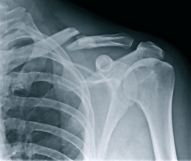 Xray Broken Arm HOW TO RETURN FROM A B...